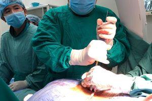 Bắt vít qua da cố định cột sống cho bệnh nhân thoát vị đĩa đệm cột sống thắt lưng