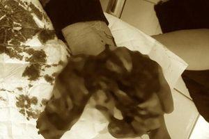 Cậu bé 15 tuổi dập nát bàn tay vì nghịch thuốc pháo tự chế