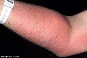 Tự tiêm tinh trùng vào tay người đàn ông 33 tuổi nhập viện gấp