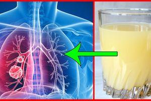 Cách cứu lá phổi cho người hút thuốc và người hít phải khói thuốc