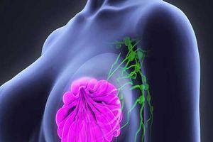 Phương pháp mới biến tế bào ung thư vú thành mỡ