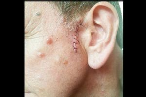 Thoát chết nhờ thợ cắt tóc phát hiện khối u ung thư trên đầu