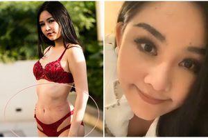 Nghi án Lê Âu Ngân Anh hút mỡ cấp tốc để thi Miss Intercontinental và sự thật về những dấu lằn đỏ đáng sợ trên cơ thể