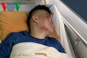 Nghi án nhân viên giao hàng ở Yên Bái bị hành hung dã man