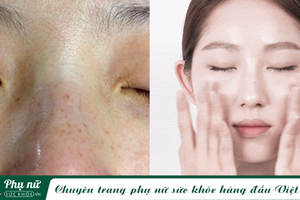 Những dưỡng chất được chuyên gia khuyên dùng để xóa sạch đốm đen, nám sạm và tàn nhang giúp da mặt trắng mịn, không tì vết