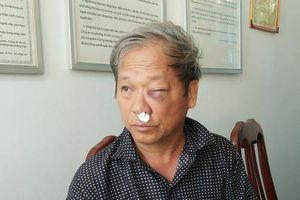 Phóng viên VTV bị côn đồ đánh nhập viện