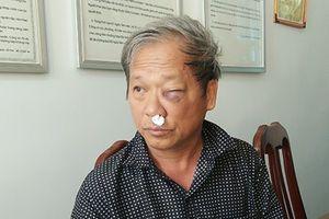 Tỉnh Kon Tum chỉ đạo điều tra vụ phóng viên VTV bị đánh
