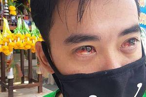 Dân Thái Lan ho ra máu vì Thủ đô ô nhiễm quá nặng