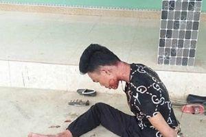 Nghệ An: Phát hiện người vợ chết, chồng bị thương trong căn nhà khóa cửa