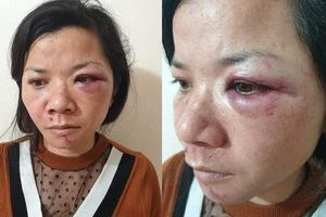 Tâm sự đẫm nước mắt của người phụ nữ bị chồng đánh dã man vào tối mùng 2 Tết