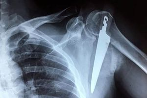 Cứu bệnh nhân bị dao dài 20cm cắm vào vai