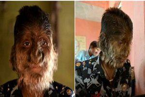Cậu bé Ấn Độ và hội chứng 'người sói'