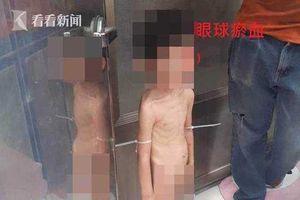 Phẫn nộ cậu bé 3 tuổi bị bố và người tình bạo hành mỗi ngày, đói tới mức phải lấy phân để ăn