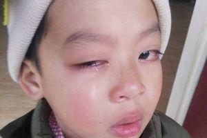 Lạng Sơn: Học sinh có nguy cơ hỏng mắt, nghi do bị cô giáo dùng thước đánh