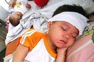 Trẻ mắc sởi ở Hà Nội và TP Hồ Chí Minh cùng tăng chóng mặt