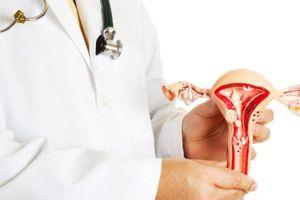 Phần lớn phát hiện ung thư cổ tử cung ở Việt Nam khi bệnh giai đoạn muộn