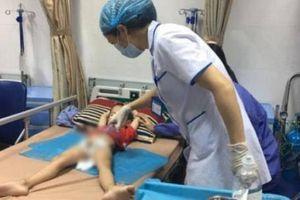 Thêm hàng chục bé trai bị mắc bệnh sùi mào gà ở Hưng Yên