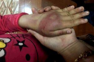Điều tra hành vi bạo hành con đẻ ở Thanh Hóa