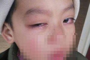 Tin mới vụ cô giáo bị tố lấy thước kẻ đánh vào mắt học sinh