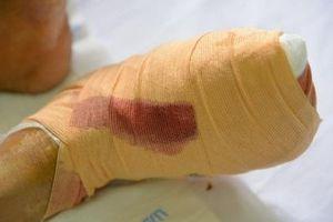Nhiều trường hợp đái tháo đường tăng nhanh và biến chứng nặng sau Tết