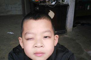 Cô giáo bị nghi đánh vào mắt học sinh đã được bố trí dạy trở lại