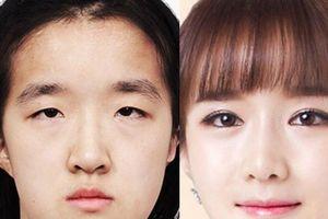 Gái đẹp Hàn Quốc 1000 cô trông như 1 và ám ảnh 'đập đi xây lại'