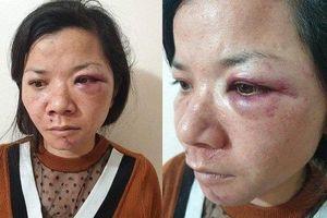 Người chồng đánh đập vợ dã man ở Nam Định bị phạt gần 5 triệu đồng