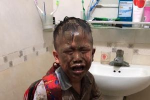 Cậu bé đi học về khóc mếu, toàn thân đầy bùn đất do mải bắt cua cá trở thành khoảnh khắc đáng yêu nhất MXH