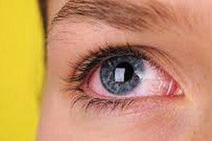 Khám mắt miễn phí cho người có nguy cơ bị bệnh glôcôm