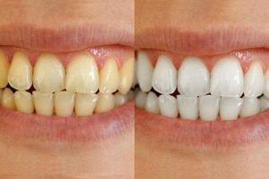 2 cách giúp hàm răng trắng tự nhiên