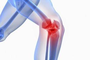 Bào chế được vắc xin giúp giảm đau do viêm xương khớp