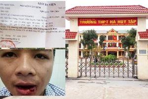 Khởi tố thầy giáo vụ xô xát khiến cán bộ tòa án bị gãy 5 răng