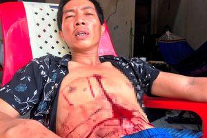 Thanh niên bị bắn vào ngực nhưng 'thà chết không đi bệnh viện'