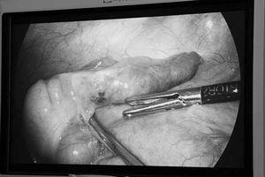 Hy hữu phẫu thuật ruột thừa phát hiện xương cá đâm xuyên thành ruột