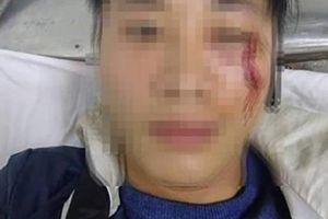 Shipper tố bị khách đánh chảy máu mặt vì giao hàng muộn