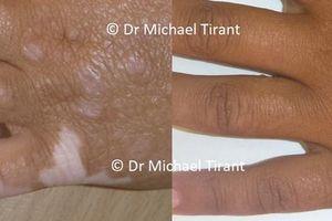 Điều trị bệnh bạch biến hiệu quả bằng thảo dược Vitilinex