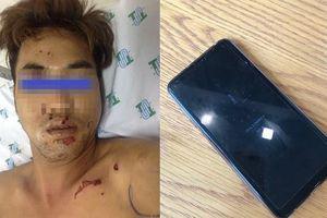 Tai nạn nguy hiểm: Vừa sạc pin vừa nói chuyện điện thoại, nam thanh niên suýt nát mặt