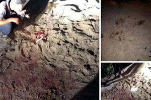 Hưng Yên: Đàn chó tấn công bé trai 7 tuổi nhập viện nguy kịch