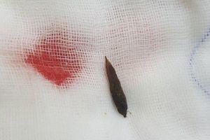 Bị hạt chà là đâm thủng ruột non, phải phẫu thuật cấp cứu