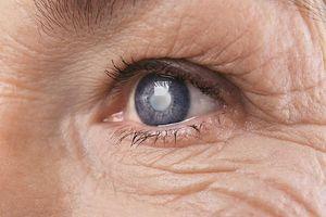 Phương pháp điều trị đột phá giúp chữa vết thương ở mắt do bị tạt a xít