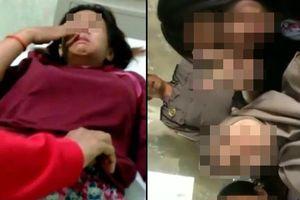 Chấn động Indonesia: Thiếu nữ 14 tuổi bị 12 học sinh đánh hội đồng, tấn công tình dục