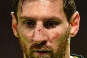 Bị Smalling đánh vỡ mũi, Messi sẽ được nghỉ ngơi chờ Man United