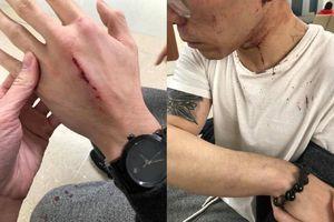 Nam thanh niên tố bị chủ nhà hàng người Việt tại Mỹ đánh đập dã man vì xin nghỉ làm