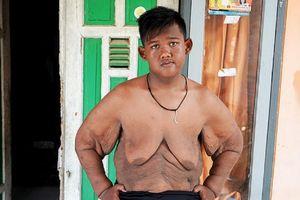 Cậu bé mập nhất thế giới đã giảm được 106 kg