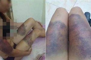 Vụ cô gái trẻ mang bầu 6 tháng bị 'bắt cóc', tra tấn dã man đến sẩy thai: Nạn nhân van xin nhóm đòi nợ nhưng bất thành