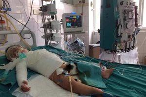LD1948 - Bé trai 11 tháng tuổi bị bỏng toàn thân cần được giúp đỡ