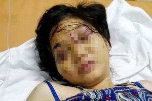 Nhân chứng vụ bà bầu 18 tuổi bị giam, tra tấn đến sẩy thai: Hoảng hốt kêu cứu khi mở túi ni lông đen