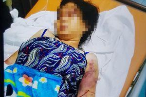 Xót xa lời kể bà bầu 18 tuổi bị tra tấn đến sẩy thai: Nữ quái ép nạn nhân phải hút 'đá'