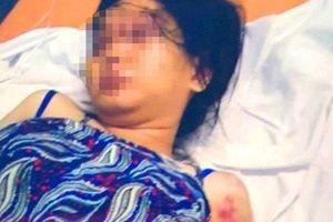 Luật sư phân tích yếu tố pháp lý vụ cô gái bị bắt giữ, tra tấn đến sẩy thai