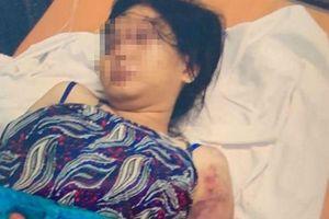 Khởi tố một nghi phạm giam giữ, tra tấn cô gái đến sảy thai